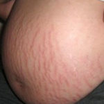 stretch marks for pregnant